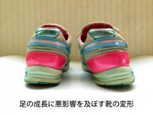 足の成長に悪影響を及ぼす靴の変形